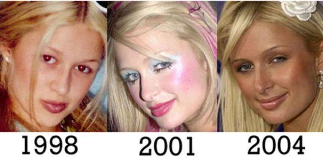 Звезды до и после ринопластики (36 фото)