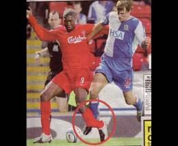 Футбольные травмы
