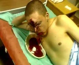 Ужасная рана на лбу