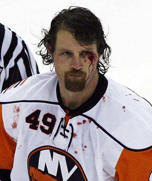 Трус не играет в хоккей! (33 фото)