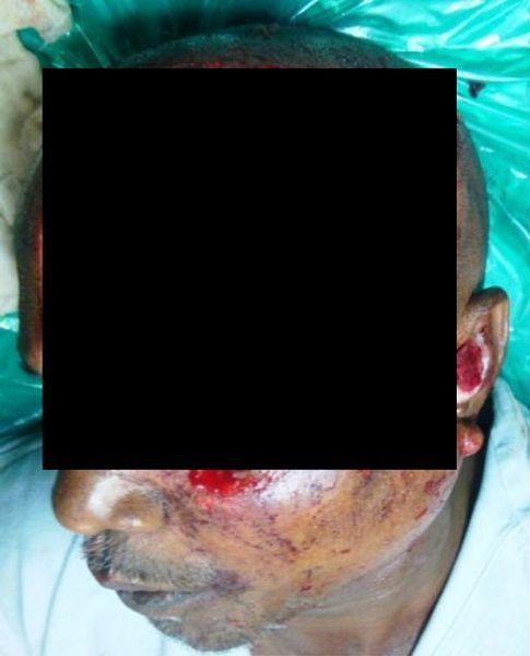 Пересадка кожи бедра на лицо (5 фото)