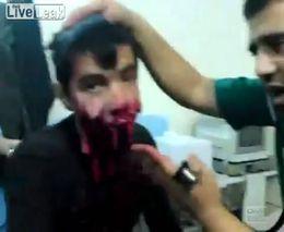 После атаки в Сирии
