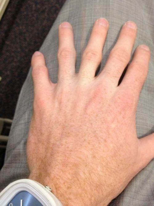 Бесплатно фото мутант, прикол, рука, шесть пальцев