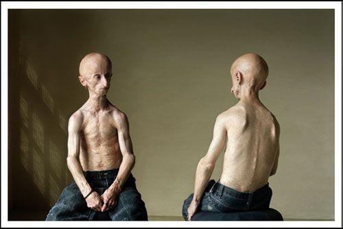 Редкая болезнь Leon Botha (37 фото)