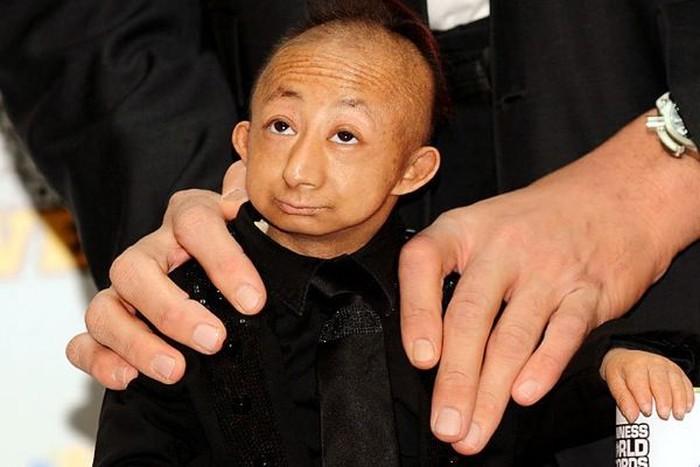 Умер самый маленький человек в мире Хэ Пинпин (17 фото)