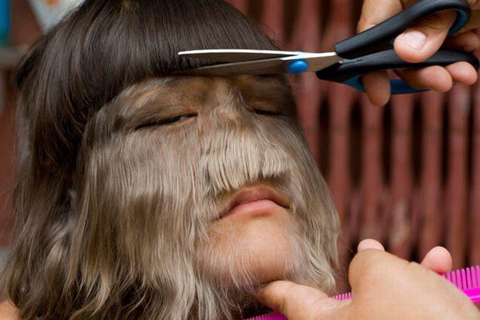 Сомпол надеется, что лишние волосы начнут выпадать, когда Нат станет взрослой, что, говорят, случалось с другими людьми, страдающими этим заболеванием. Если это не произойдет, родители Нат не исключают, что пересмотрят предложение больницы Siriraj насчет лазерной терапии.    Несмотря на необычную внешность Нат, ее одноклассники, преподаватели и любящие родители до сих пор создавали для нее полную любви и понимания обстановку, в которой 6-летняя девочка выросла самоуверенной и даже озорной.    «Мои друзья не дразнят меня, но я люблю иногда над ними подшучивать», — сказала Нат в интервью немецкому агентству dpa. Мать Нат, однако, призналась, что иногда старшие дети дразнит Нат, обзывая «обезьяной».    За прошедшие 400 лет было зафиксировано не более 50 случаев гипертрихоза, то есть один заболевший на 10 миллиардов человек.