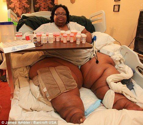 317 килограмм - вес Terri Smith, самой толстой женщины на планете. Она не может ни двигаться, ни стоять. Тэрри с детства не была худышкой. В возрасте 7 лет она весила 70 килограмм! Женщина объясняет это тем, что ее семья была бедной и она не могла питаться здоровой пищей. ШОК! :)