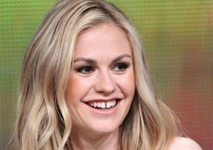 Знаменитости, которые не слышали о стоматологах (10 фото)