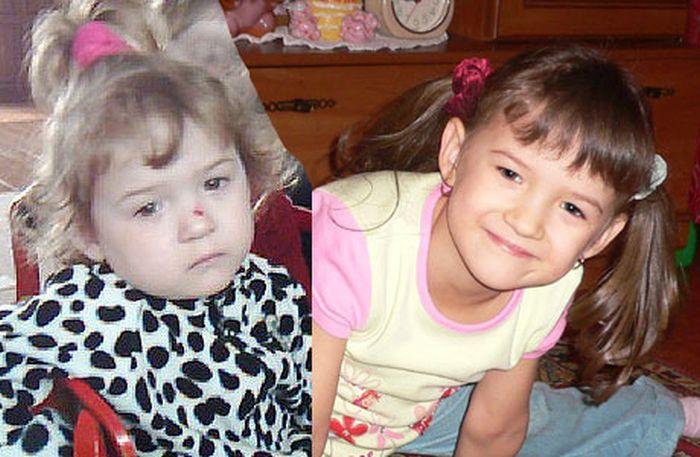 Дети до и после усыновления 54 фото