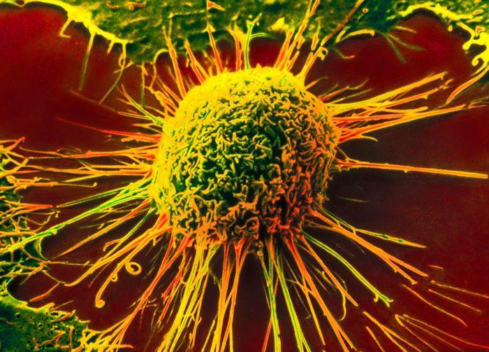 рак, опухоль, сильные люди, женщины, болезнь,