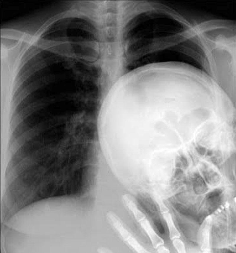 Фотоподборка испорченное фото, рентген, снимок