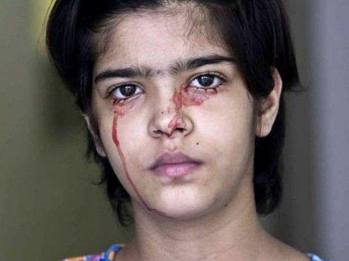 Кровавые слёзы людей (4 фото)
