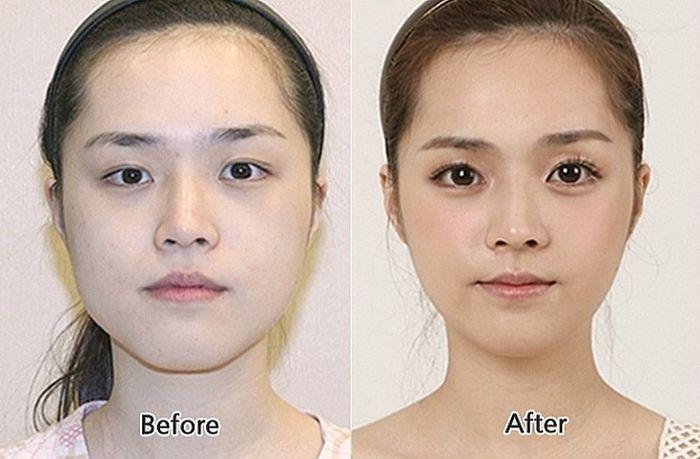 Хирургия Пластическая фото