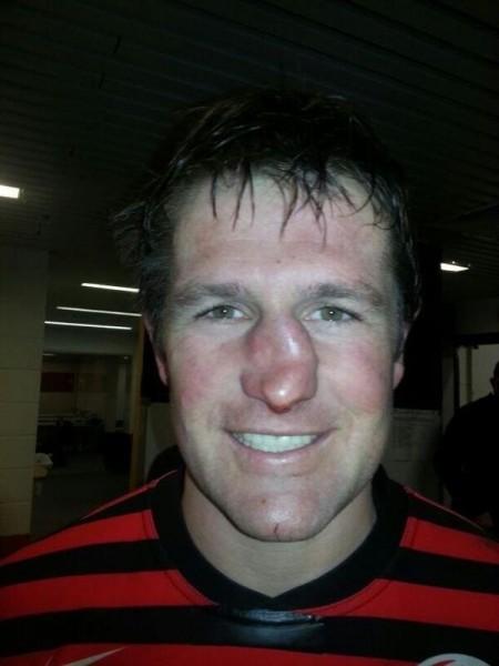 Фанни фото лицо, радость, сломал нос, спортсмен