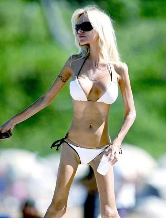Фото анорексичка, грудь, девушка, худая