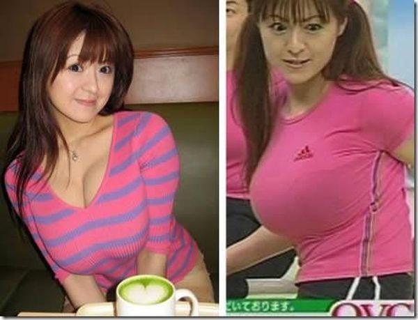 Большая грудь у подростка фото
