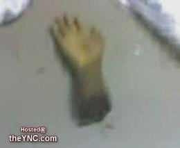 Оторвало руку