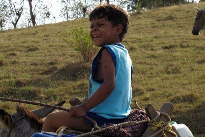 Мальчик-черепаха из Колумбии (3 фото)