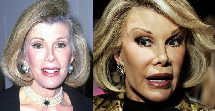 Joan Rivers (1999; 2007)