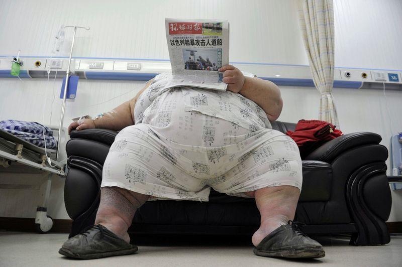Проблема ног у жирных людей фото