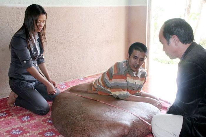 На ноге вьетнамца выросла 80-килограммовая опухоль ( 5 фото)
