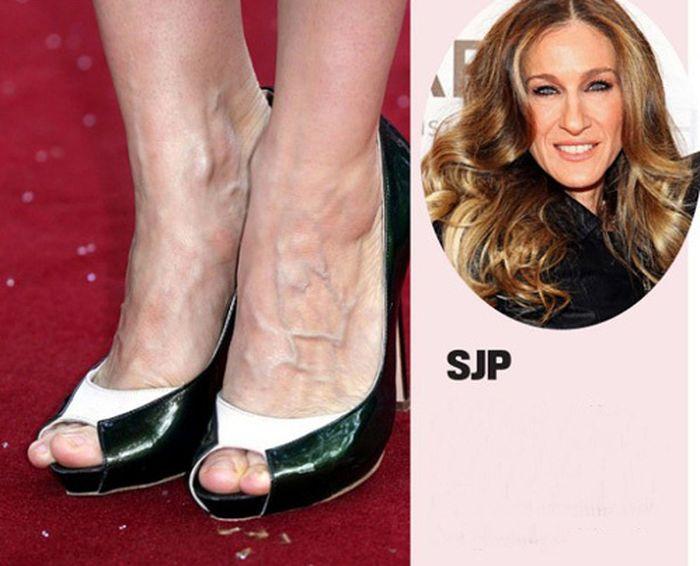 Страшные ноги звезд (15 фото)ножки знаменитостей эротическое фото
