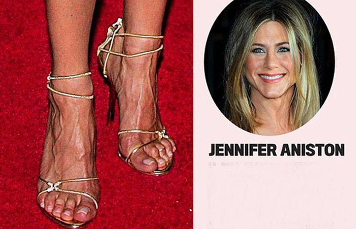 волосатые ноги у звезд люди очень