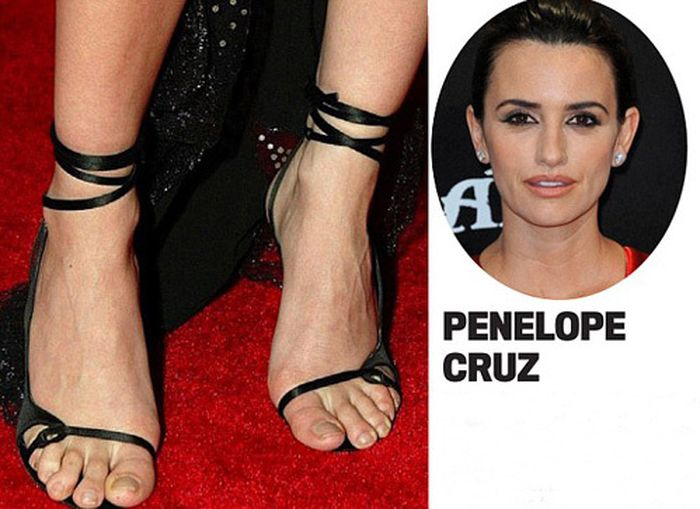 Пальчики знаменитостей на ногах фото 600-368
