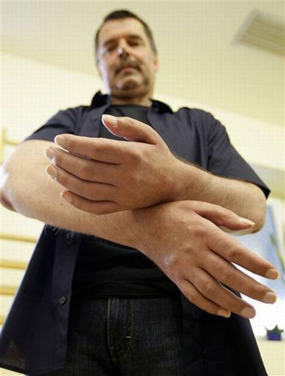 Первые в мире искусственные руки (13 фото)