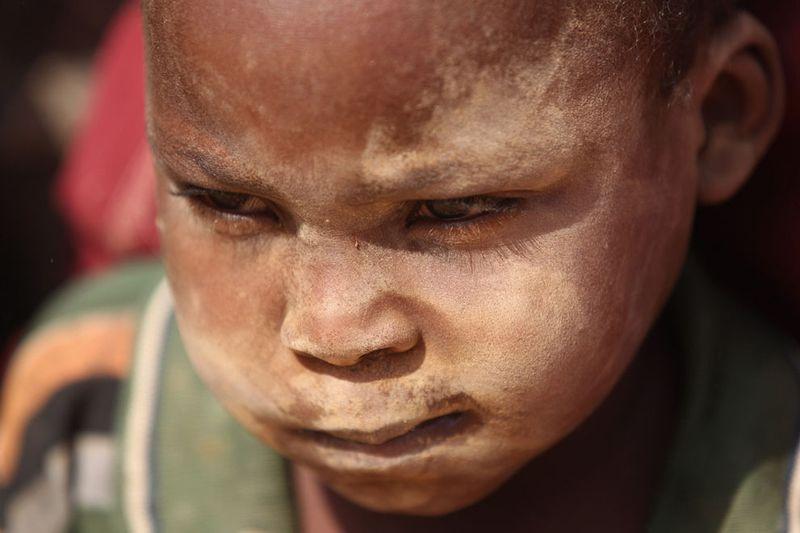 hungymamafrika15 Голод в Восточной Африке