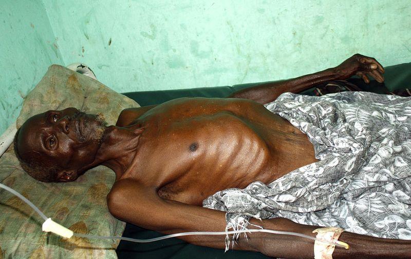 hungymamafrika17 Голод в Восточной Африке