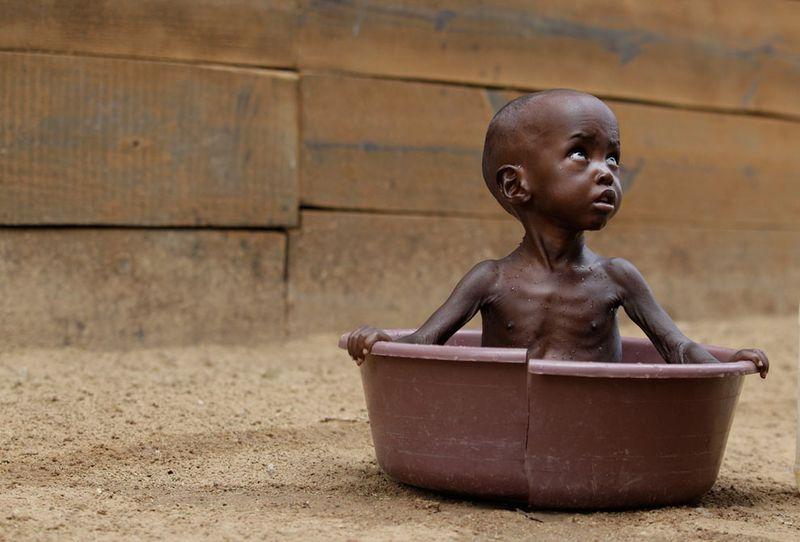 hungymamafrika26 Голод в Восточной Африке