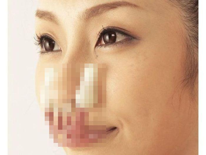 Исправляем форму носа без операции (2 фото)