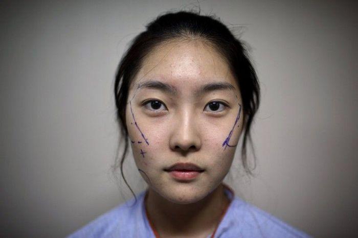 Модель косметической хирургии (10 фото)