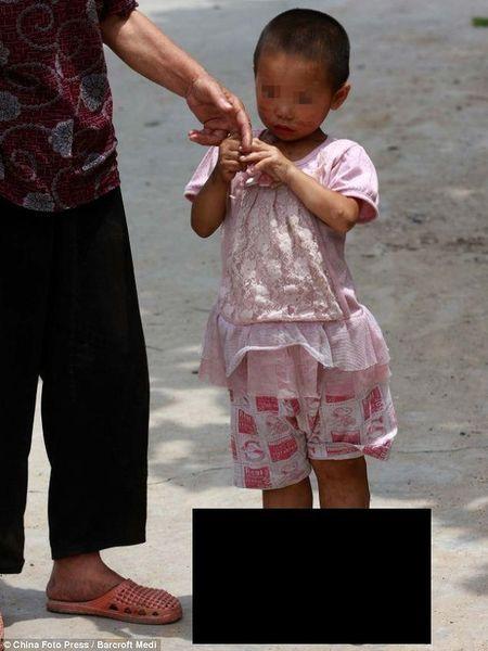 Девочка не может носить обувь (6 фото)