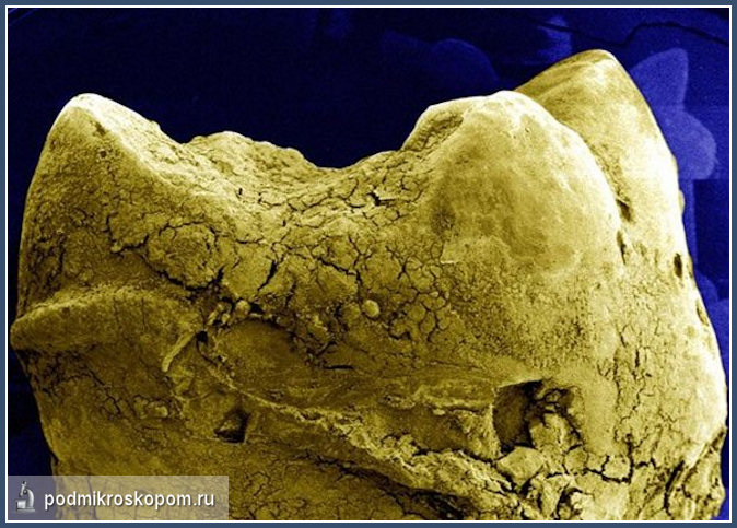 микроскоп, микроорганизм, бактерия