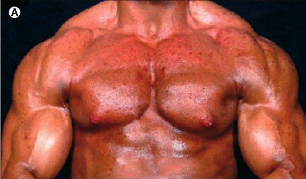 Метан стероиды universal стероиды проблемы