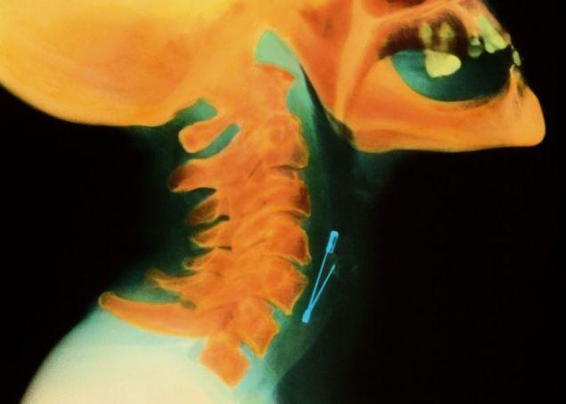 Член внутри рентген видео