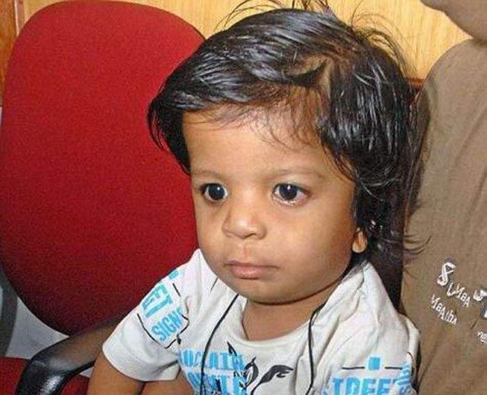 У индийского мальчика 34 пальца и ни одного большого (4 фото)