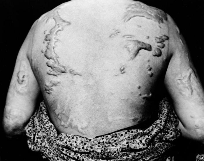 Хиросима и нагасаки последствия