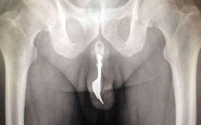 жесть, рентген, старик, пенис, вилка, засунул,