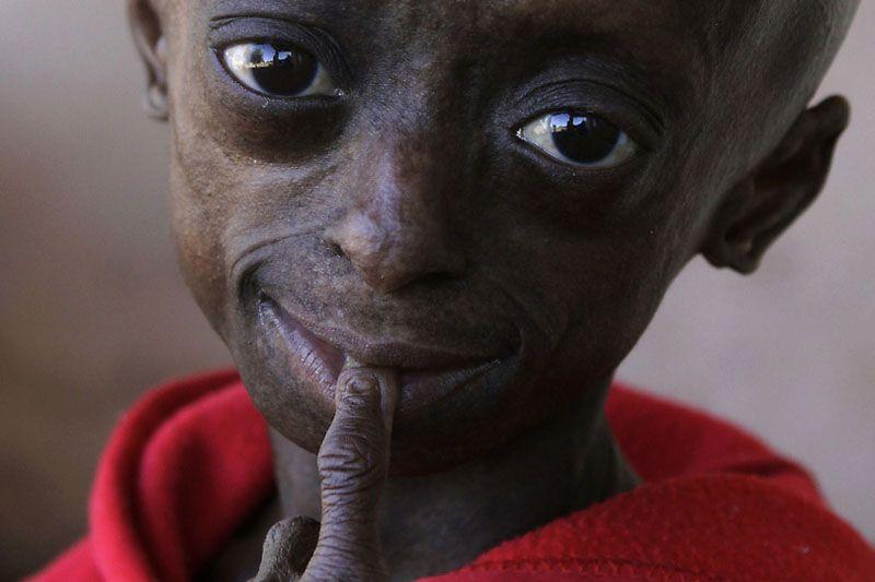 самый черный человек на земле фото тенерифе огромное количество