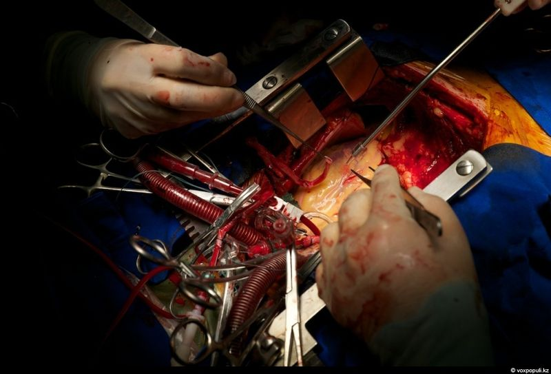 3947 Реконструкция сердца