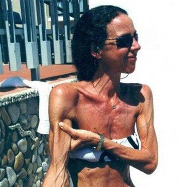 форум анорексичек как похудеть