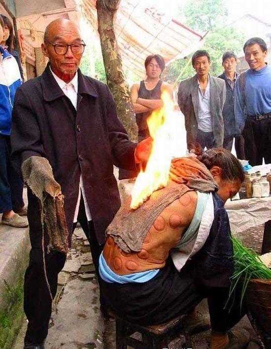 Китайская медицина на улице (7 фото)