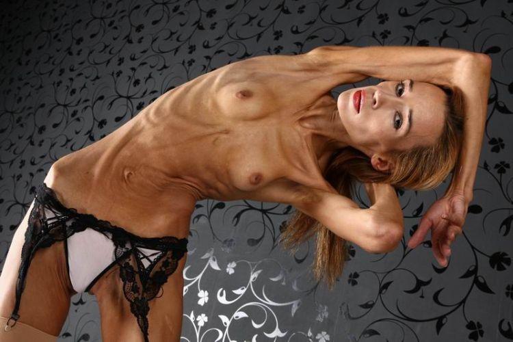 анорексия фото голых девушек тех