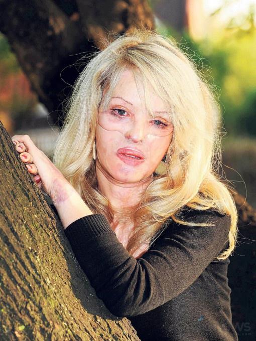 Кейти Пайпер: Мое прекрасное лицо | НЕ ИНВАЛИД RU
