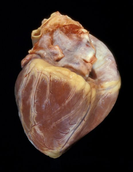 Здоровое сердце и больное (5 фото)