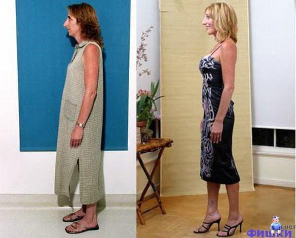 До и после: чудеса красоты (25 фото)