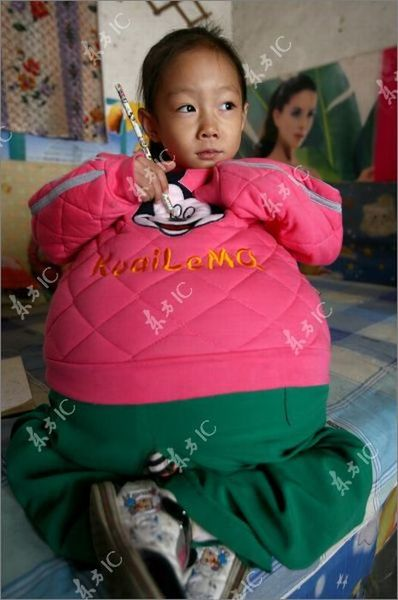 Маленькая девочка с огромным животом (19 фото)
